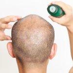 グリチルリチン酸二カリウムの育毛効果と副作用