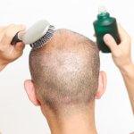 音波頭皮ブラシってよく聞くけど何?育毛効果あり?